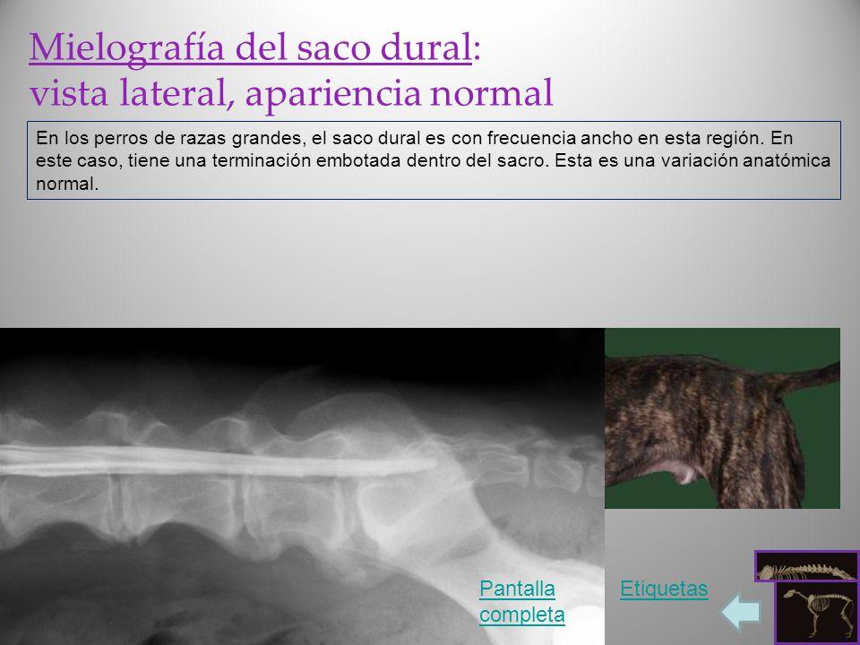 Mielografía del saco dural: vista lateral, apariencia normal En los perros de razas grandes, el saco dural es con frecuencia ancho en esta región. En