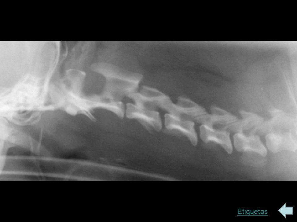 Sin etiquetas Tubérculo dorsal del atlas (C1) Bulla timpánica Ala del atlas Apófisis espinosa del axis (C2) Tubérculo ventral del atlas Bordes dorsal y ventral del canal vertebral Apófisis articular craneal de C4 Apófisis articular caudal de C3 Tubo endotraqueal en la tráquea Agujero intervertebral entre C4 y C5 Sínfisis intervertebral entre C4 y C5 Lámina ventral de la apófisis transversa de C6