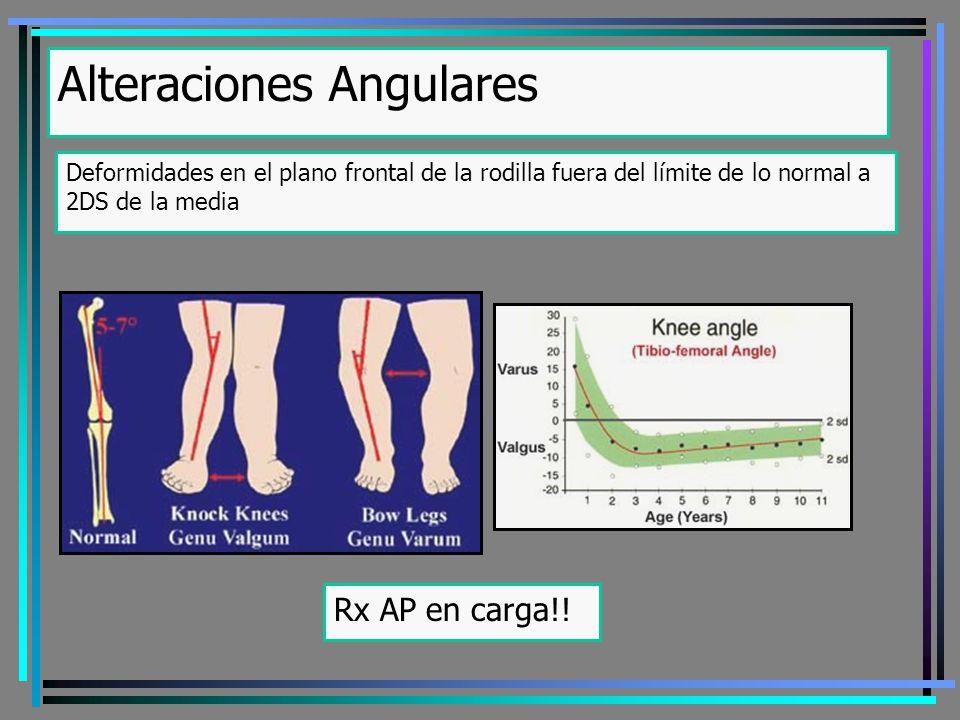 Alteraciones Angulares Deformidades en el plano frontal de la rodilla fuera del límite de lo normal a 2DS de la media Rx AP en carga!!