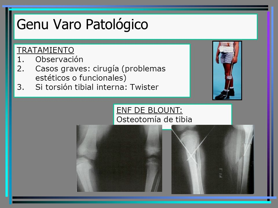 TRATAMIENTO 1.Observación 2.Casos graves: cirugía (problemas estéticos o funcionales) 3.Si torsión tibial interna: Twister Genu Varo Patológico ENF DE BLOUNT: Osteotomía de tibia