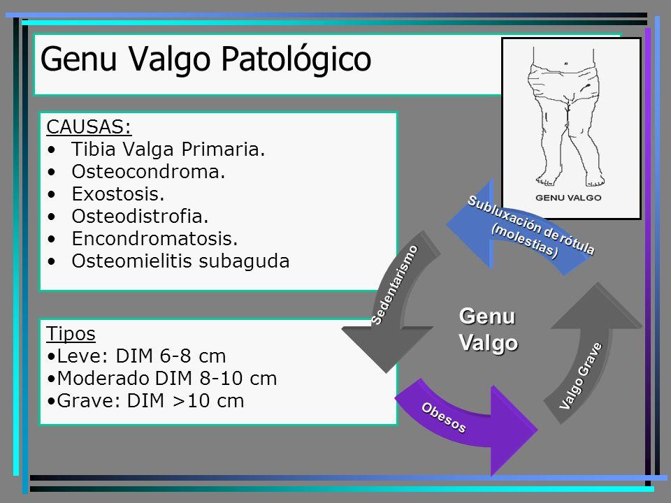 Genu Valgo Patológico TRATAMIENTO Genu valgo leve: NO TRATAR!!.