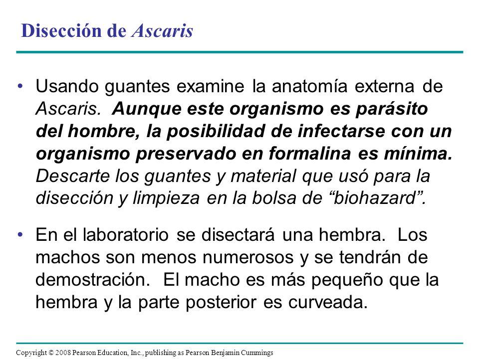 Disección de Ascaris Usando guantes examine la anatomía externa de Ascaris. Aunque este organismo es parásito del hombre, la posibilidad de infectarse