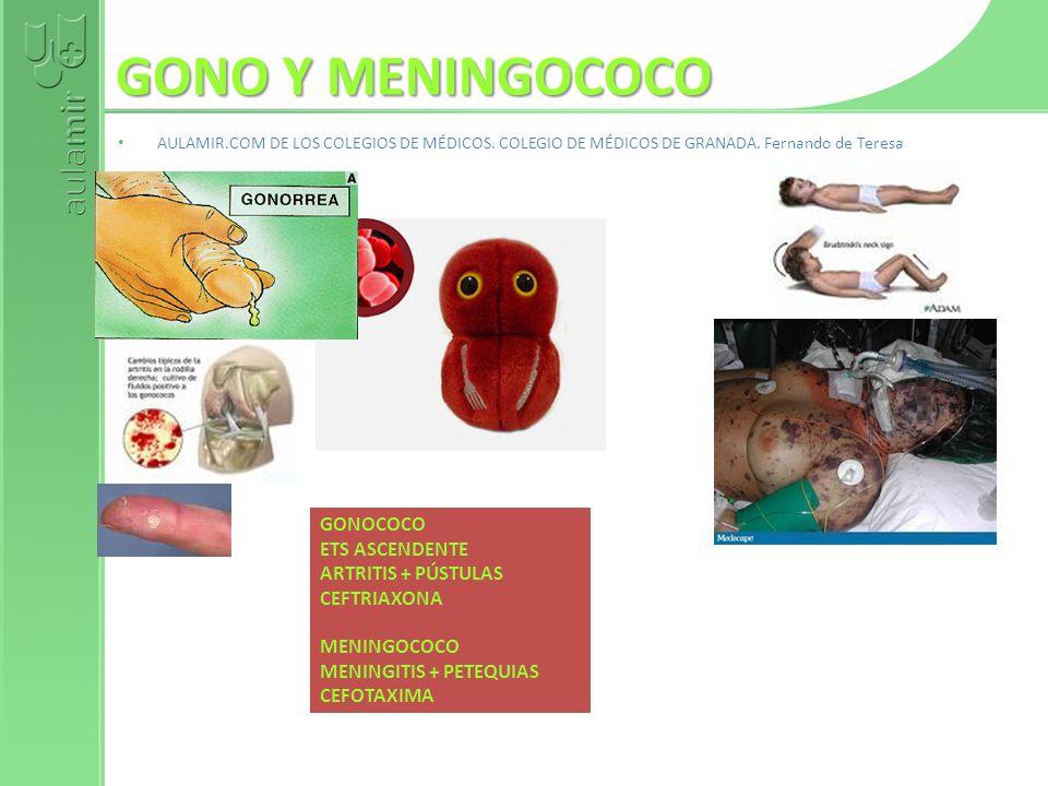 GONO Y MENINGOCOCO AULAMIR.COM DE LOS COLEGIOS DE MÉDICOS. COLEGIO DE MÉDICOS DE GRANADA. Fernando de Teresa GONOCOCO ETS ASCENDENTE ARTRITIS + PÚSTUL