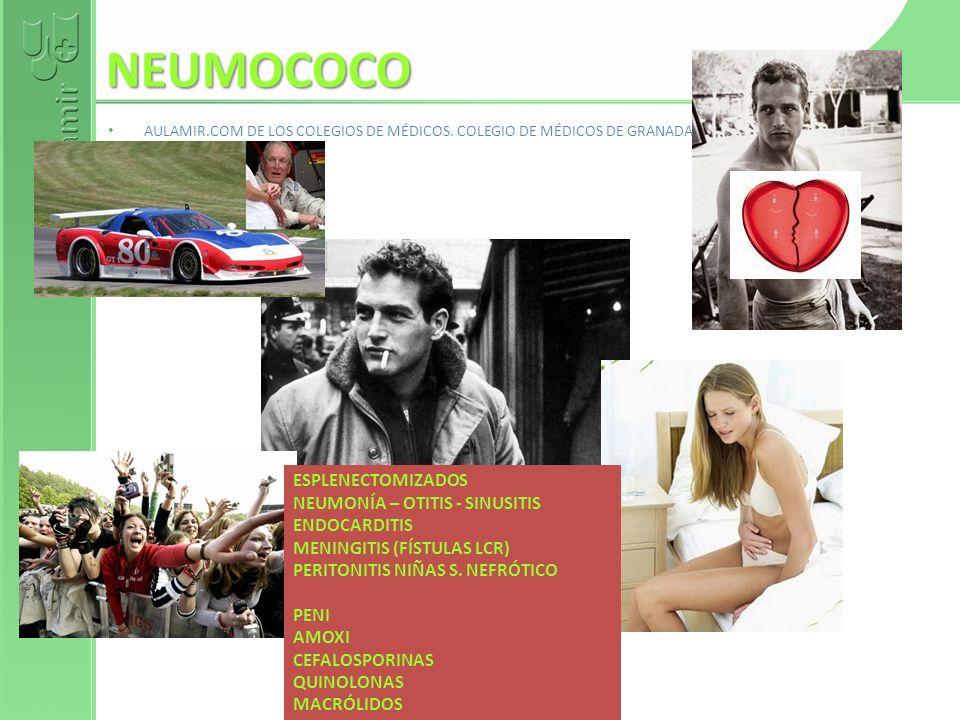 NEUMOCOCO AULAMIR.COM DE LOS COLEGIOS DE MÉDICOS. COLEGIO DE MÉDICOS DE GRANADA. Fernando de Teresa ESPLENECTOMIZADOS NEUMONÍA – OTITIS - SINUSITIS EN