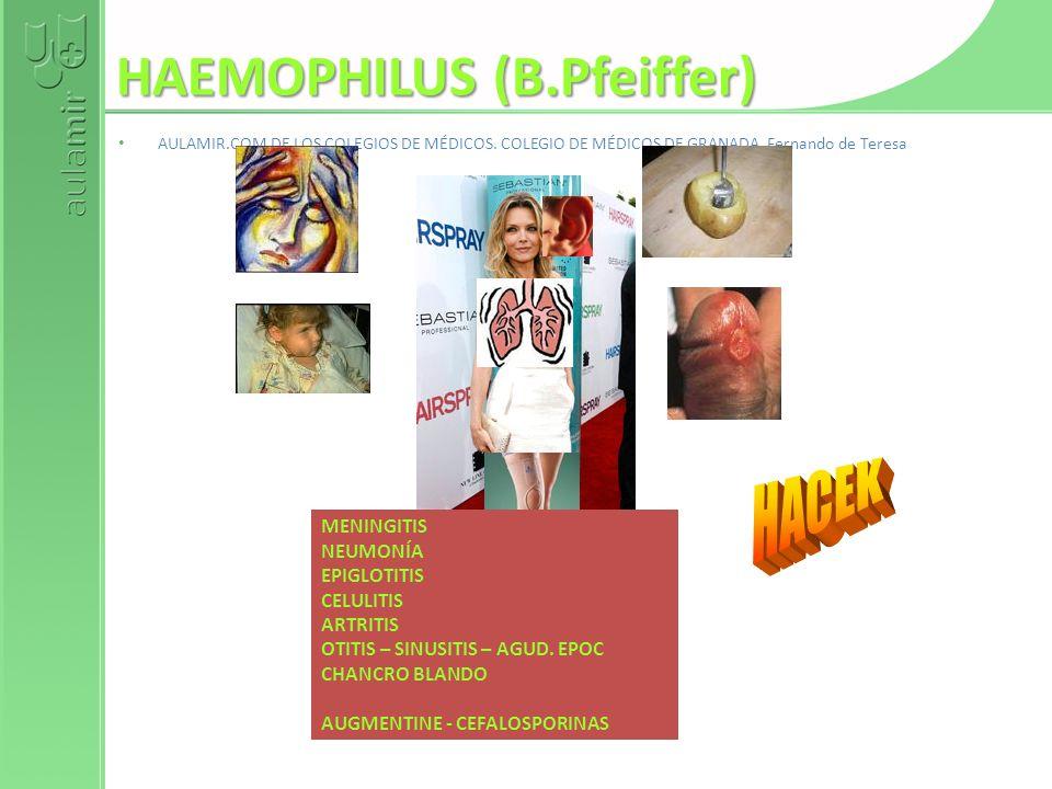 HAEMOPHILUS (B.Pfeiffer) AULAMIR.COM DE LOS COLEGIOS DE MÉDICOS. COLEGIO DE MÉDICOS DE GRANADA. Fernando de Teresa MENINGITIS NEUMONÍA EPIGLOTITIS CEL