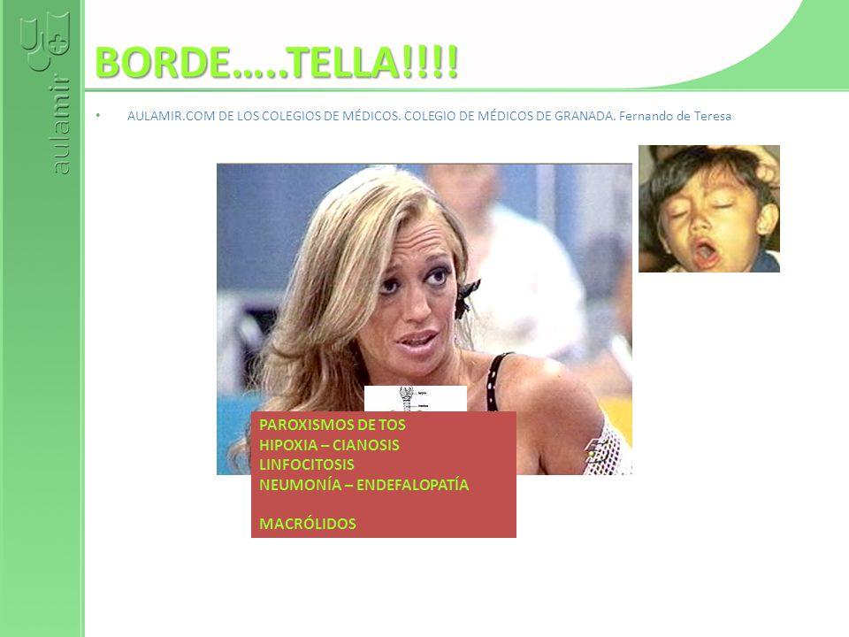 BORDE…..TELLA!!!! AULAMIR.COM DE LOS COLEGIOS DE MÉDICOS. COLEGIO DE MÉDICOS DE GRANADA. Fernando de Teresa PAROXISMOS DE TOS HIPOXIA – CIANOSIS LINFO