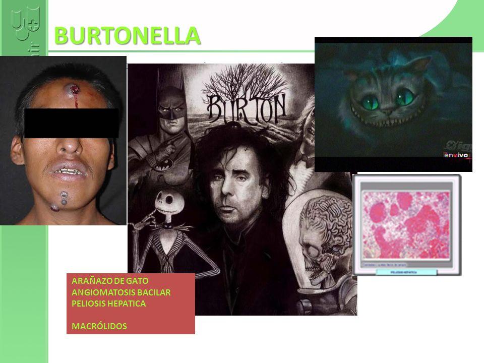 BURTONELLA AULAMIR.COM DE LOS COLEGIOS DE MÉDICOS. COLEGIO DE MÉDICOS DE GRANADA. Fernando de Teresa ARAÑAZO DE GATO ANGIOMATOSIS BACILAR PELIOSIS HEP