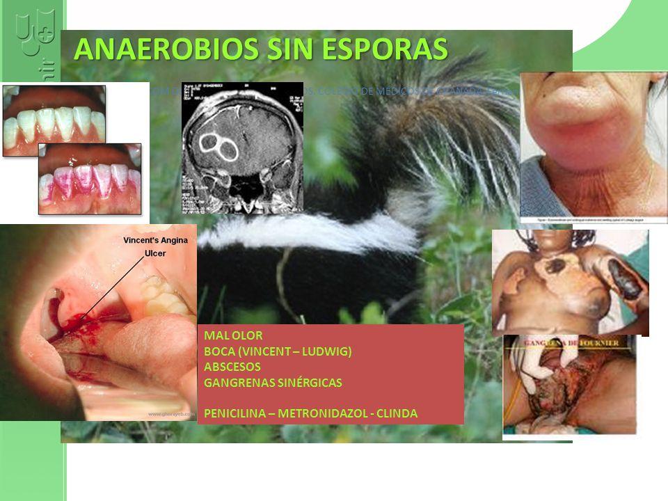 Curso 2012 INFECCIOSOINFECCIOSO Bacterias pequeñas