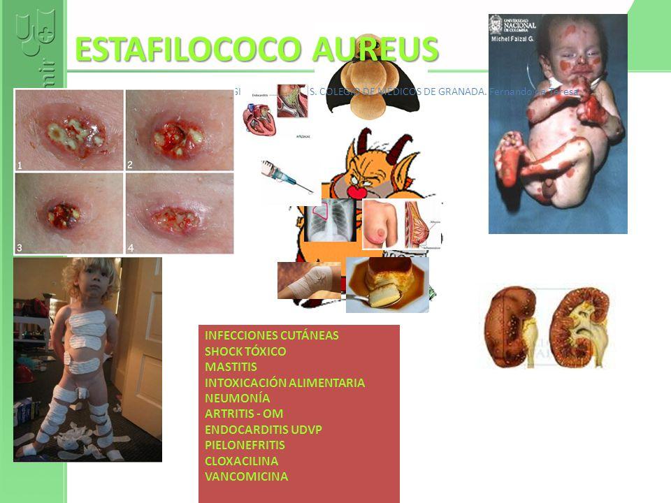 ESTAFILOCOCO AUREUS AULAMIR.COM DE LOS COLEGIOS DE MÉDICOS. COLEGIO DE MÉDICOS DE GRANADA. Fernando de Teresa INFECCIONES CUTÁNEAS SHOCK TÓXICO MASTIT
