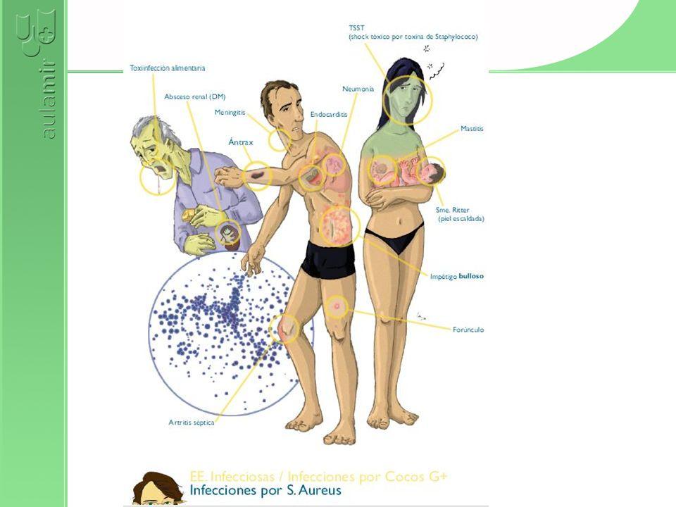 OTROS ESTAFILO EPIDERMIDIS PRÓTESIS VANCOMICINA SAPROPHITICUS INFECCIÓN URINARIA SENSIBLE A ATB