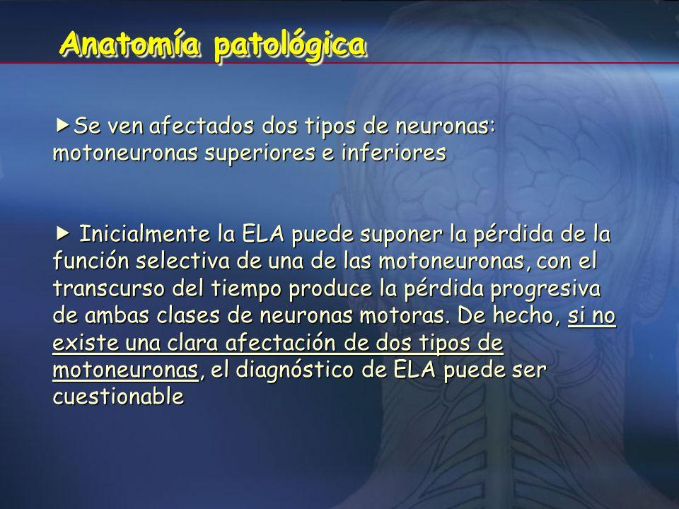 DefiniciónDefinición Es la forma más frecuente de enfermedad progresiva de la neurona motora. Es la forma más frecuente de enfermedad progresiva de la