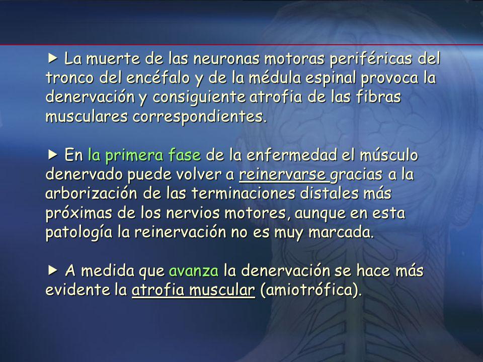 Anatomía patológica Se ven afectados dos tipos de neuronas: motoneuronas superiores e inferiores Se ven afectados dos tipos de neuronas: motoneuronas
