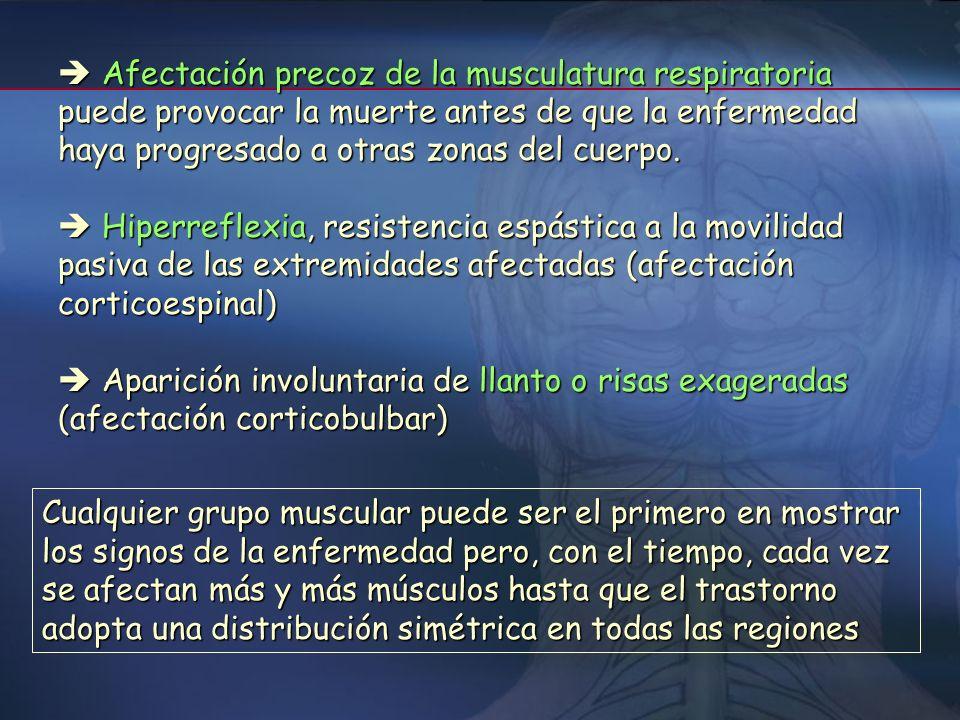 Manifestaciones clínicas Pérdida de fuerza asimétrica de desarrollo insidioso, que suele comenzar en la zona distal de una de las extremidades. (recie