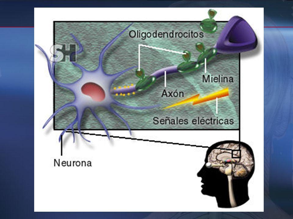La desmielinización es selectiva (respeta los axones) aunque también pueden encontrarse una destrución axonal parcial o total. La desmielinización es