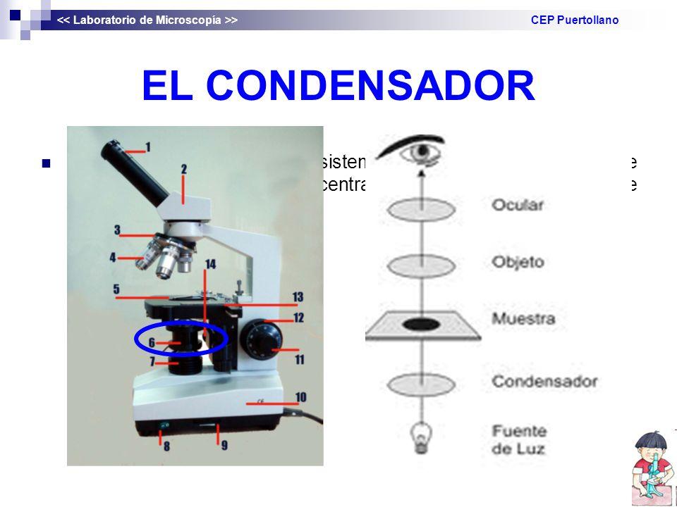 EL CONDENSADOR DENIFICIÓN: es una lente o sistema de lentes situadas debajo de la platina y que permite concentrar la luz en la muestra que se observa.