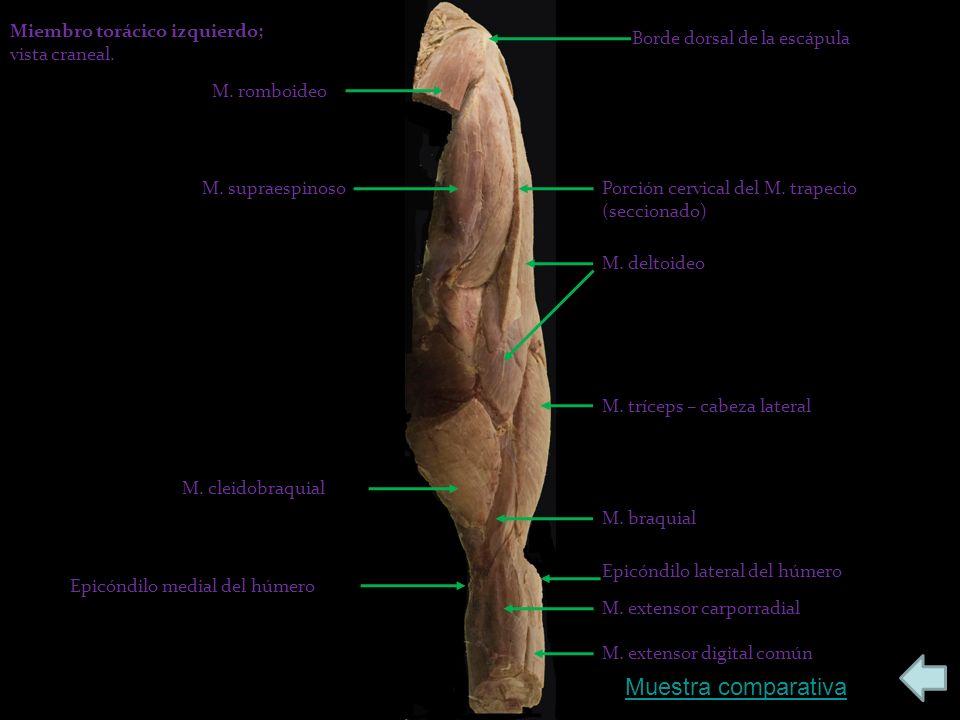 Borde dorsal de la escápula M.romboideo M. supraespinosoPorción cervical del M.