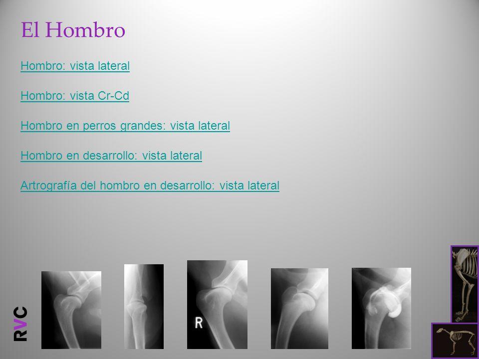 En comparación con la radiografía anterior, se han inyectado 5 ml de medio de contraste radiológico (iohexol 100mg/ml) en la articulación escapulohumeral abarcándola lateralmente.