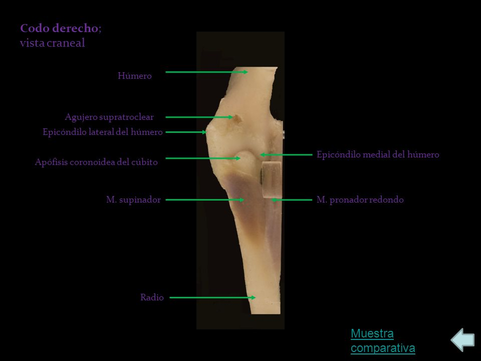 Húmero Agujero supratroclear Epicóndilo lateral del húmero Epicóndilo medial del húmero Apófisis coronoidea del cúbito M.