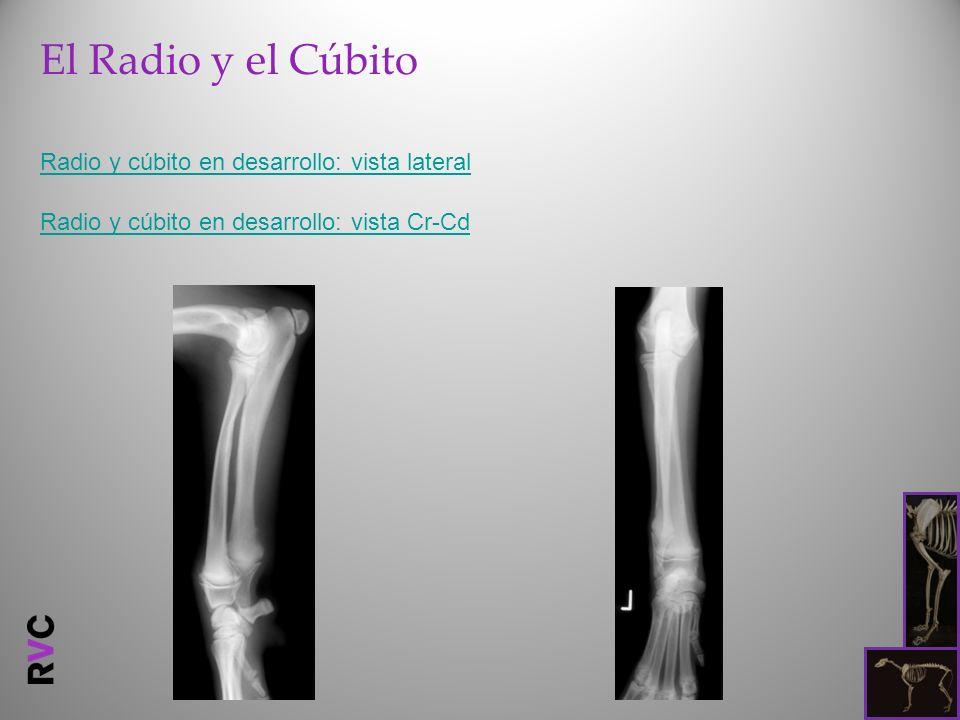 El Radio y el Cúbito Radio y cúbito en desarrollo: vista lateral Radio y cúbito en desarrollo: vista Cr-Cd