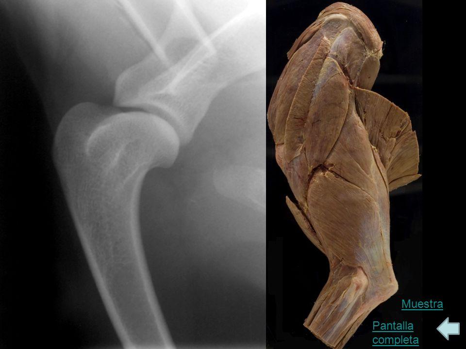 Codo en crecimiento: vista Cr-Lat, Cd-Med oblicua Etiquetas Muestra Pantalla completa En esta radiografía, el codo se ha supinado, permitiendo una visión medial del cóndilo y de la articulación entre el húmero y la apófisis coronoidea medial del cúbito.