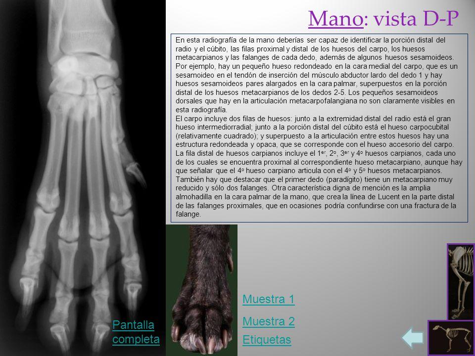 Etiquetas Muestra 1 Pantalla completa Muestra 2 En esta radiografía de la mano deberías ser capaz de identificar la porción distal del radio y el cúbito, las filas proximal y distal de los huesos del carpo, los huesos metacarpianos y las falanges de cada dedo, además de algunos huesos sesamoideos.