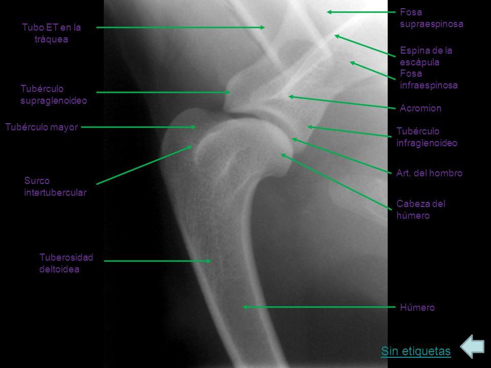 Hombro en desarrollo: vista lateral Etiquetas Muestra Pantalla completa El cartílago de crecimiento proximal del húmero está abierto.