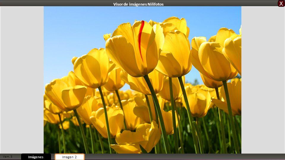 Vem. 5 ImágenesImagen 2 Visor de imágenes Niñfotos