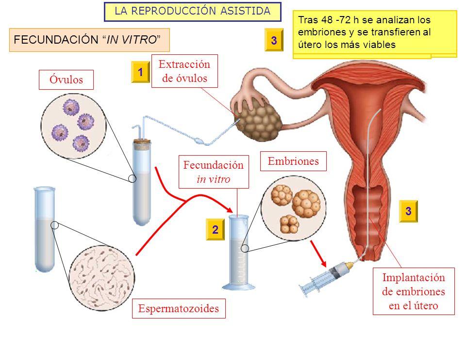 LA REPRODUCCIÓN ASISTIDA Embriones Espermatozoides Óvulos Extracción de óvulos Fecundación in vitro Implantación de embriones en el útero FECUNDACIÓN