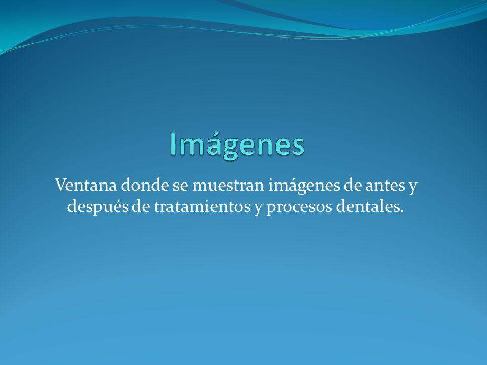 Ventana donde se muestran imágenes de antes y después de tratamientos y procesos dentales.