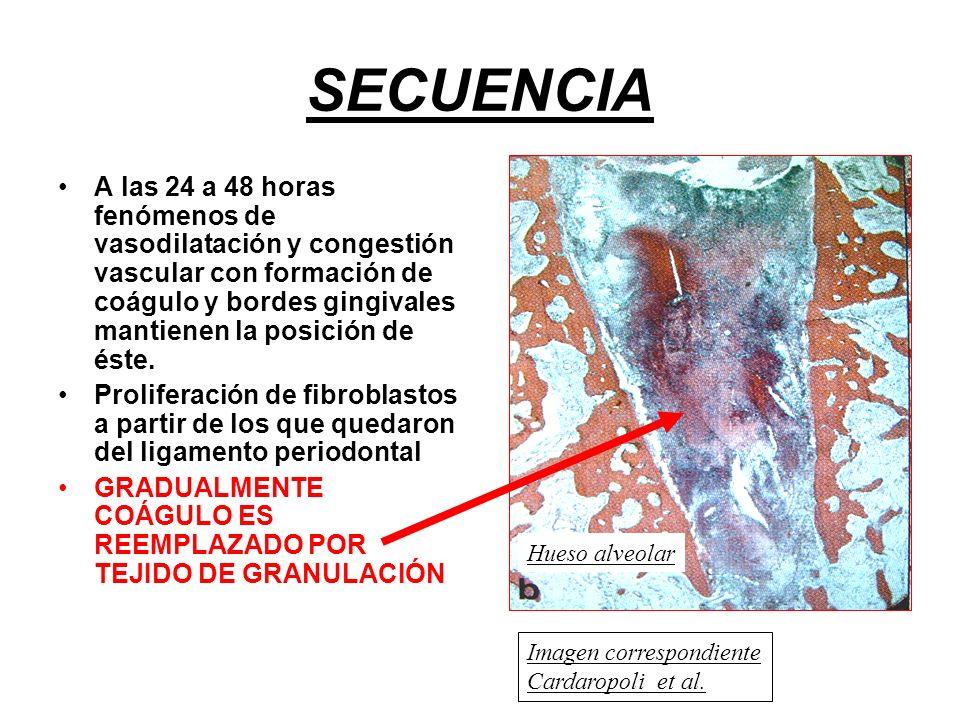 SECUENCIA A las 24 a 48 horas fenómenos de vasodilatación y congestión vascular con formación de coágulo y bordes gingivales mantienen la posición de éste.