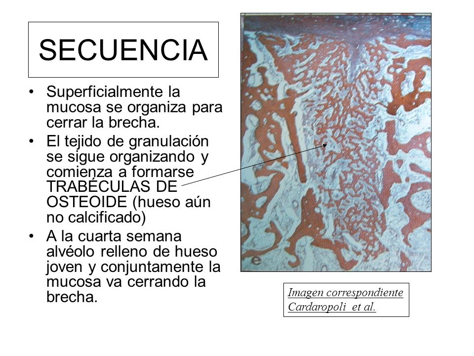 SECUENCIA Superficialmente la mucosa se organiza para cerrar la brecha. El tejido de granulación se sigue organizando y comienza a formarse TRABÉCULAS