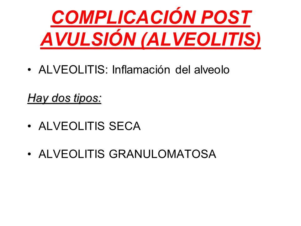 ALVEOLITIS: Inflamación del alveolo Hay dos tipos: ALVEOLITIS SECA ALVEOLITIS GRANULOMATOSA COMPLICACIÓN POST AVULSIÓN (ALVEOLITIS)