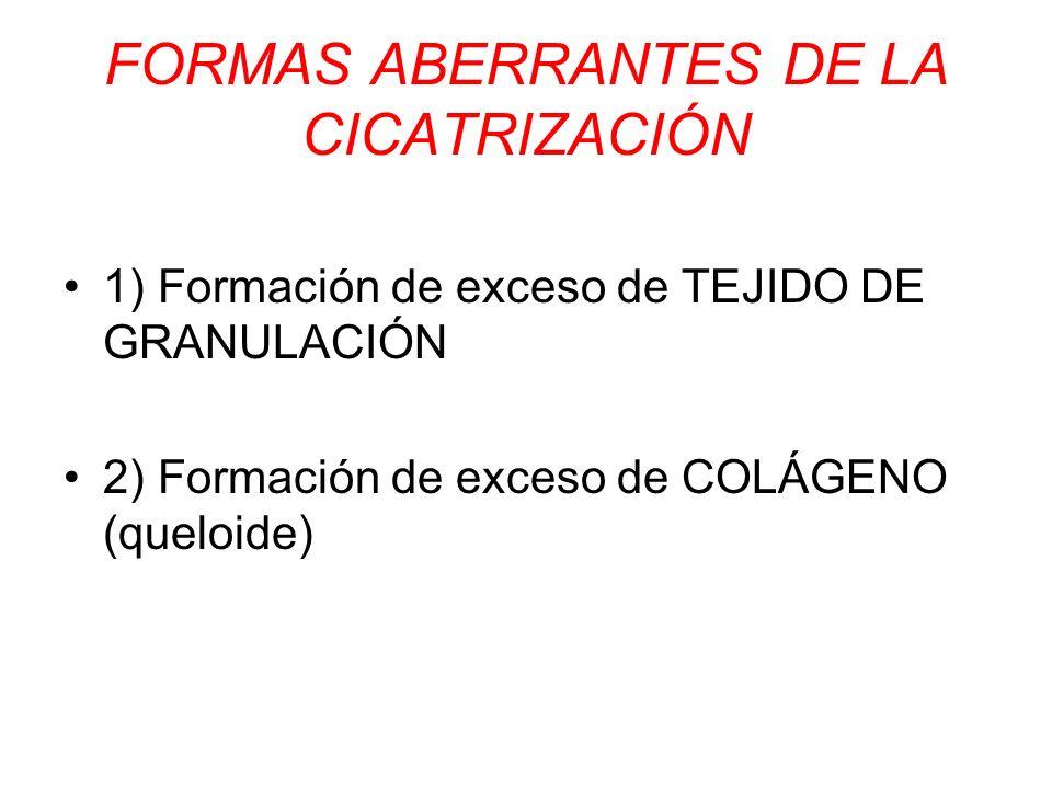 FORMAS ABERRANTES DE LA CICATRIZACIÓN 1) Formación de exceso de TEJIDO DE GRANULACIÓN 2) Formación de exceso de COLÁGENO (queloide)