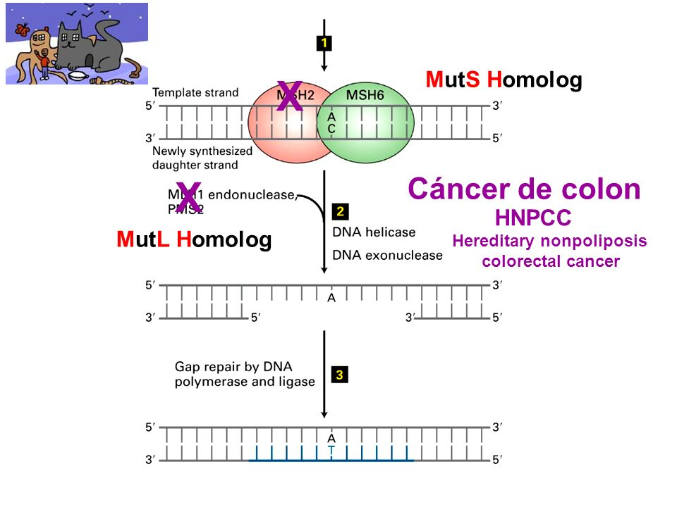 MutS Homolog MutL Homolog X X Cáncer de colon HNPCC Hereditary nonpoliposis colorectal cancer
