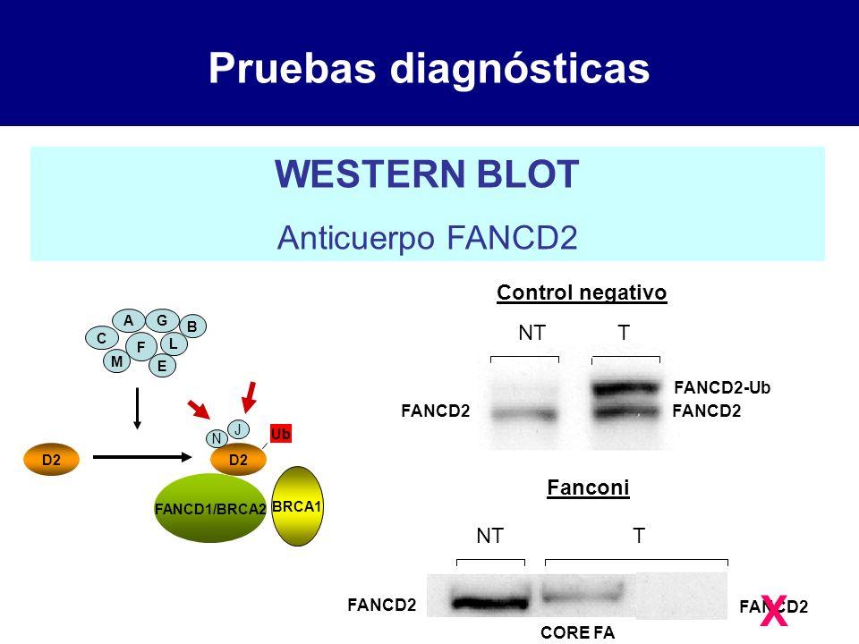 Pruebas diagnósticas WESTERN BLOT Anticuerpo FANCD2 AG L F E B C M D2 Ub FANCD1/BRCA2 BRCA1 N J Control negativo NT T Fanconi NT FANCD2 FANCD2-Ub T FA