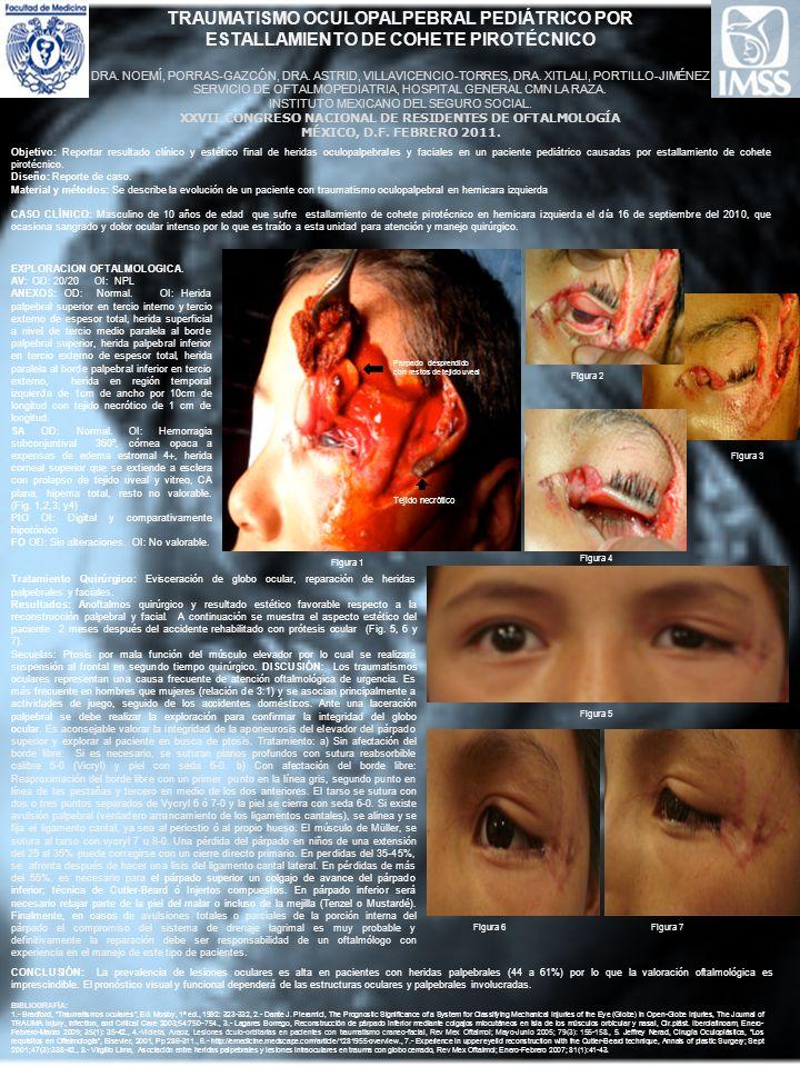 Objetivo: Reportar resultado clínico y estético final de heridas oculopalpebrales y faciales en un paciente pediátrico causadas por estallamiento de c