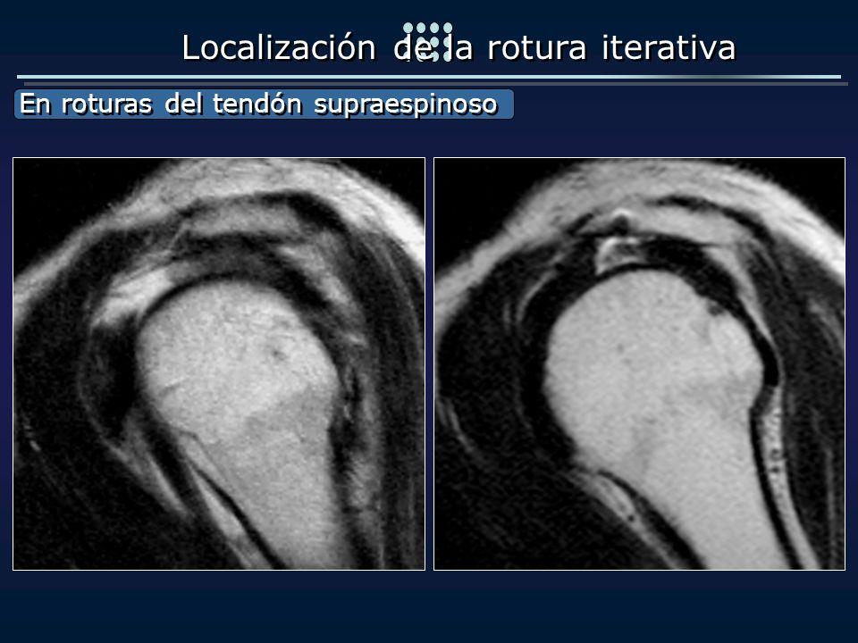 Localización de la rotura iterativa En roturas del tendón supraespinoso En roturas del tendón supraespinoso