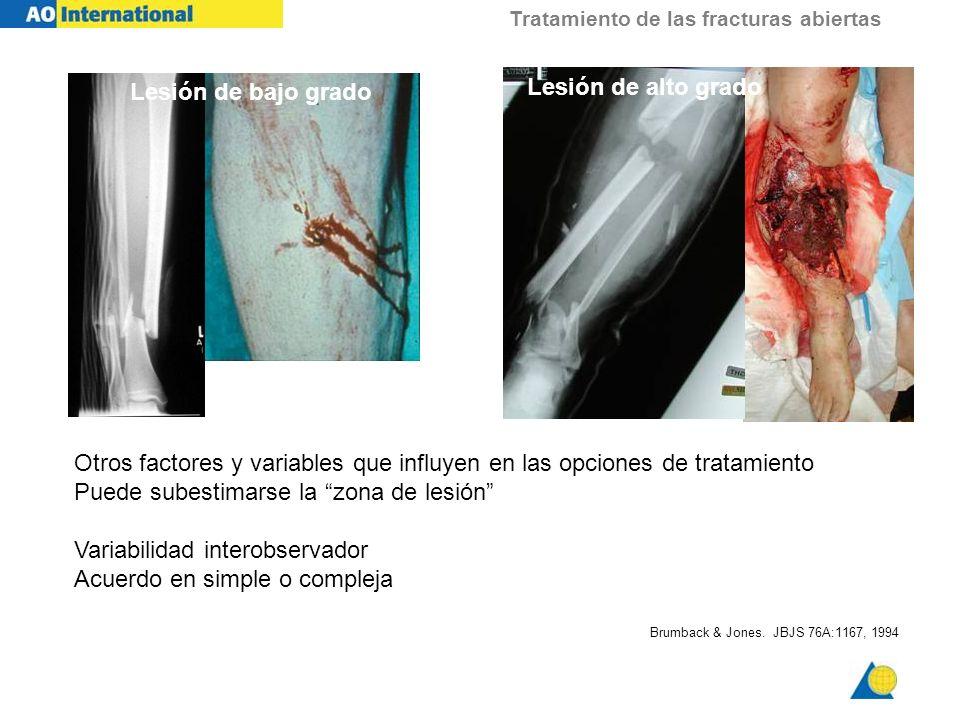 Tratamiento de las fracturas abiertas Otros factores y variables que influyen en las opciones de tratamiento Puede subestimarse la zona de lesión Vari