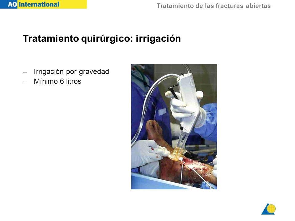 Tratamiento de las fracturas abiertas Tratamiento quirúrgico: irrigación –Irrigación por gravedad –Mínimo 6 litros