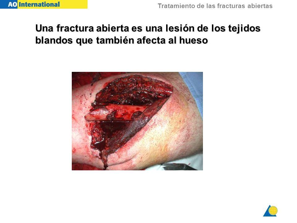 Tratamiento de las fracturas abiertas Una fractura abierta es una lesión de los tejidos blandos que también afecta al hueso