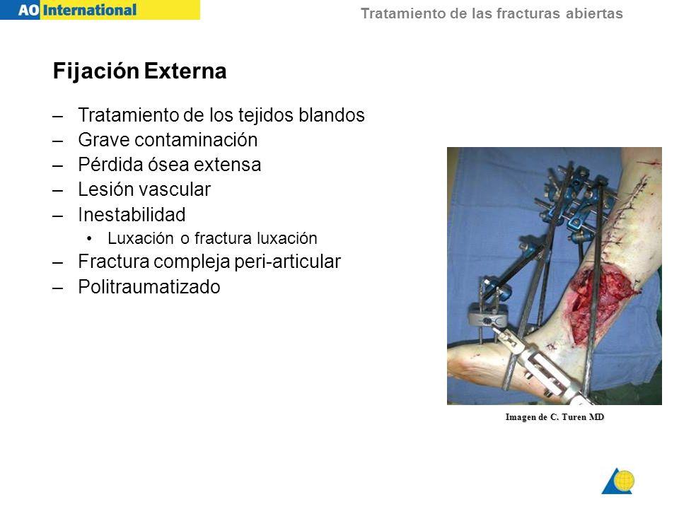 Tratamiento de las fracturas abiertas Fijación Externa –Tratamiento de los tejidos blandos –Grave contaminación –Pérdida ósea extensa –Lesión vascular