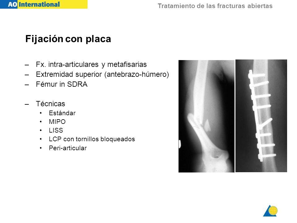 Tratamiento de las fracturas abiertas Fijación con placa –Fx. intra-articulares y metafisarias –Extremidad superior (antebrazo-húmero) –Fémur in SDRA