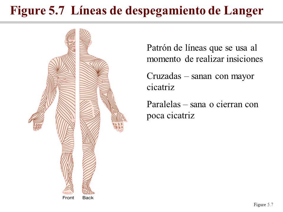 Figure 5.7 Líneas de despegamiento de Langer Figure 5.7 Patrón de líneas que se usa al momento de realizar insiciones Cruzadas – sanan con mayor cicat