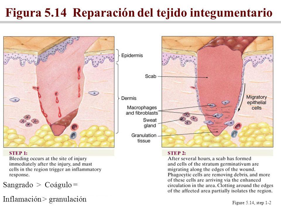 Figura 5.14 Reparación del tejido integumentario Figure 5.14, step 1-2 Sangrado > Coágulo = Inflamación > granulación