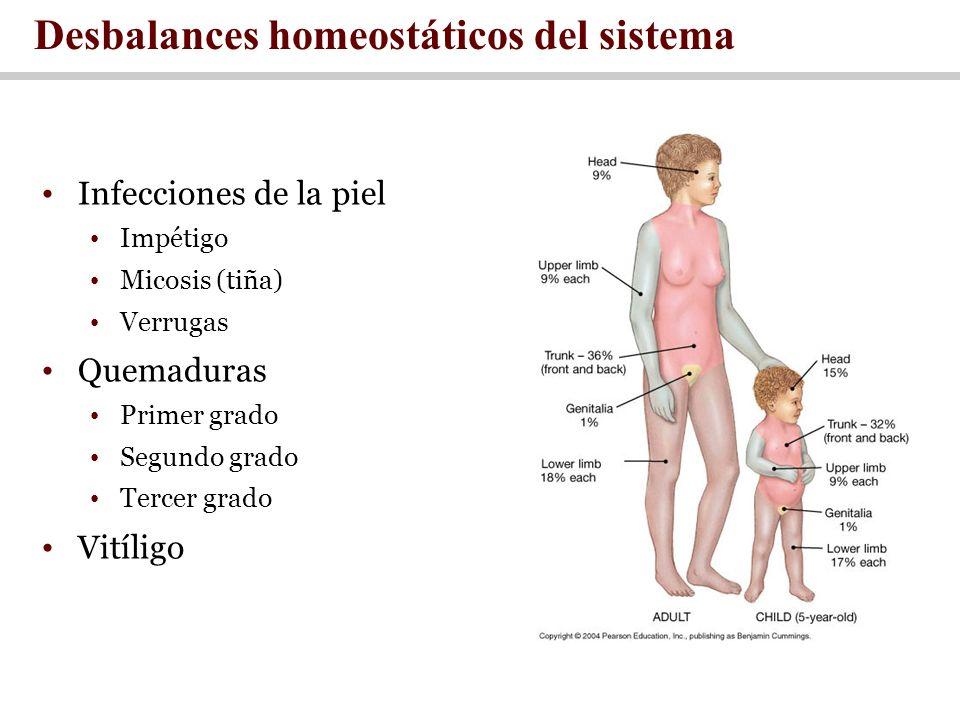 Desbalances homeostáticos del sistema Infecciones de la piel Impétigo Micosis (tiña) Verrugas Quemaduras Primer grado Segundo grado Tercer grado Vitíl