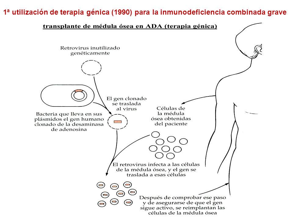 1ª utilización de terapia génica (1990) para la inmunodeficiencia combinada grave