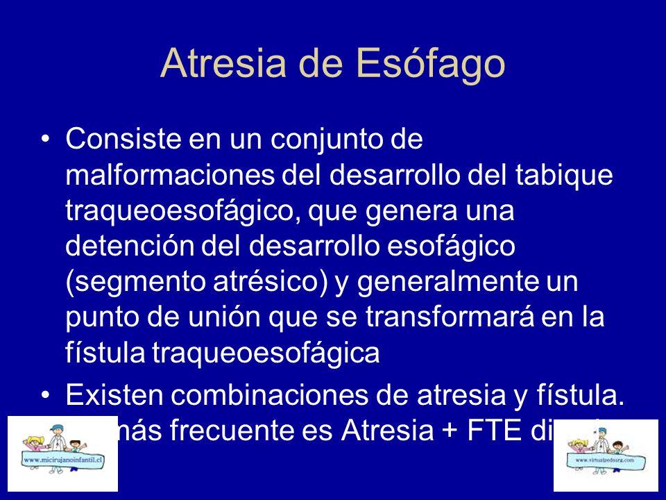 Atresia de Esófago Consiste en un conjunto de malformaciones del desarrollo del tabique traqueoesofágico, que genera una detención del desarrollo esof