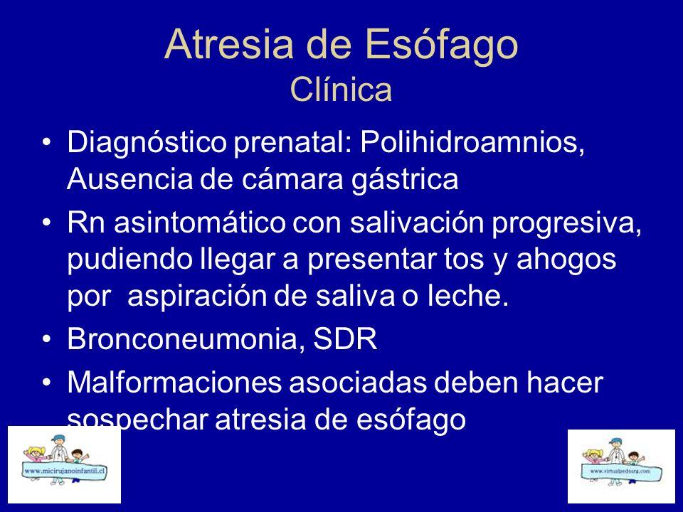 Atresia de Esófago Clínica Diagnóstico prenatal: Polihidroamnios, Ausencia de cámara gástrica Rn asintomático con salivación progresiva, pudiendo lleg