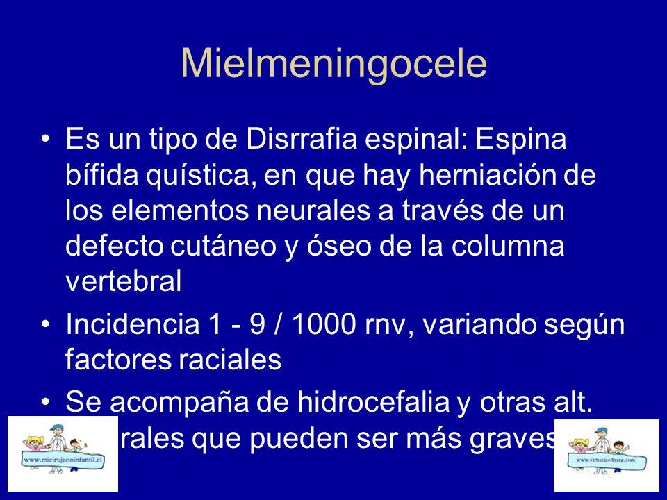 Mielmeningocele Es un tipo de Disrrafia espinal: Espina bífida quística, en que hay herniación de los elementos neurales a través de un defecto cutáne