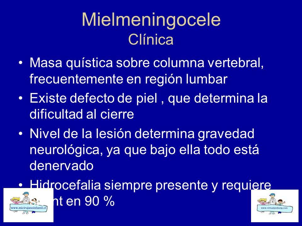 Mielmeningocele Clínica Masa quística sobre columna vertebral, frecuentemente en región lumbar Existe defecto de piel, que determina la dificultad al